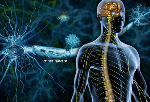 Multiple Sclerosis and Me