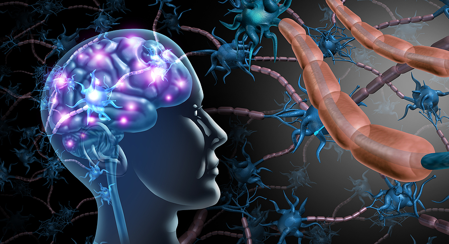 Reducing Inflammation to Reduce Multiple Sclerosis