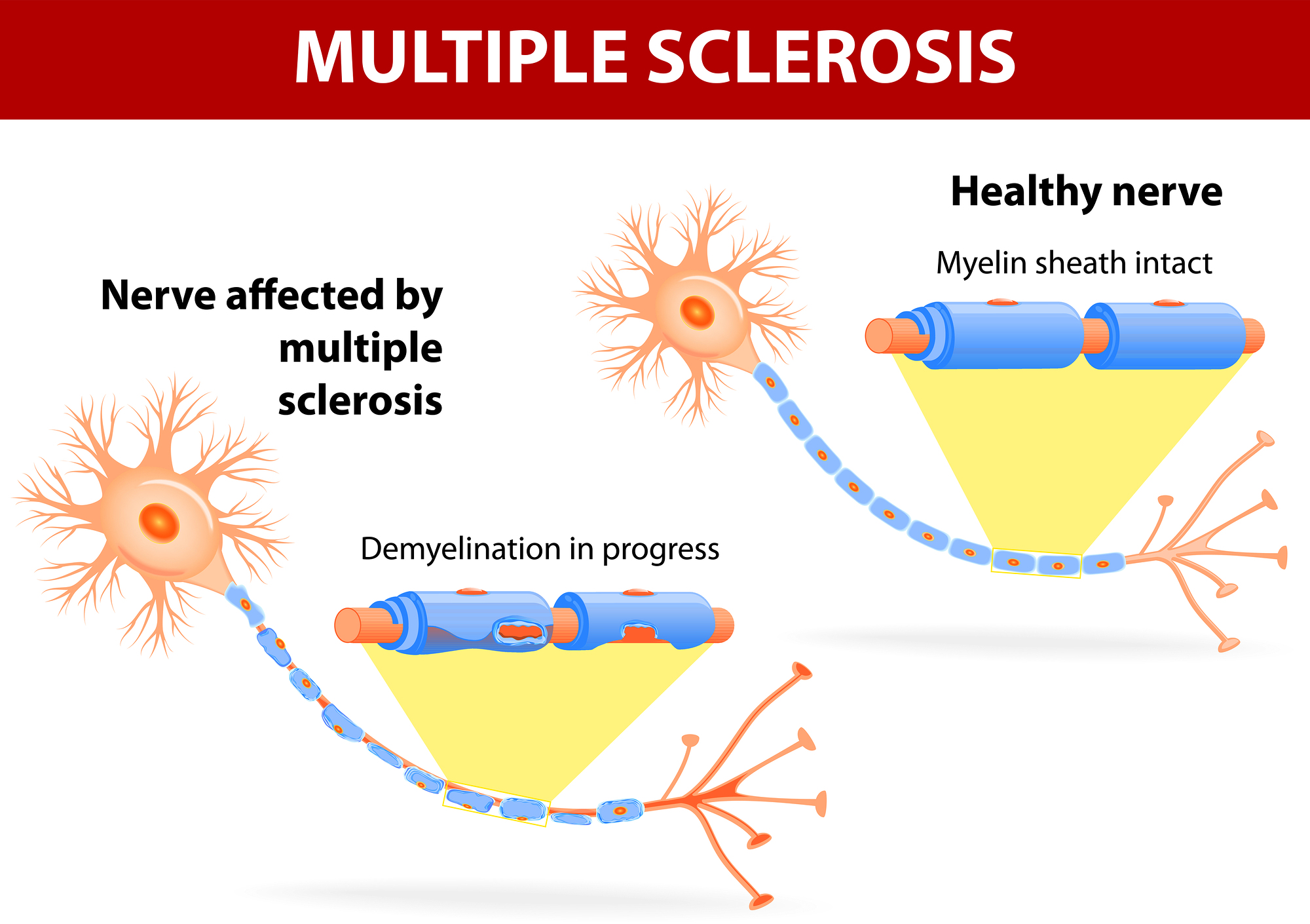 Your Child and Multiple Sclerosis in Renton WA